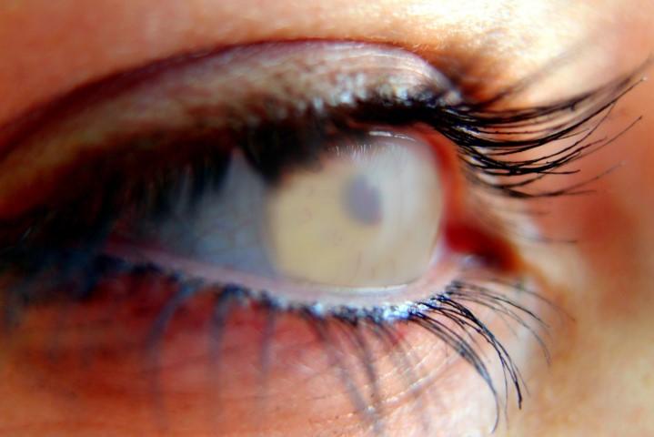Behandlung Gruener Star Vision 100