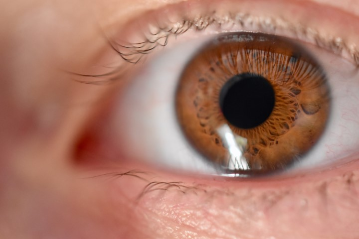 Vision100 Augenärzte Behandlung der Makuladegeneration OCT